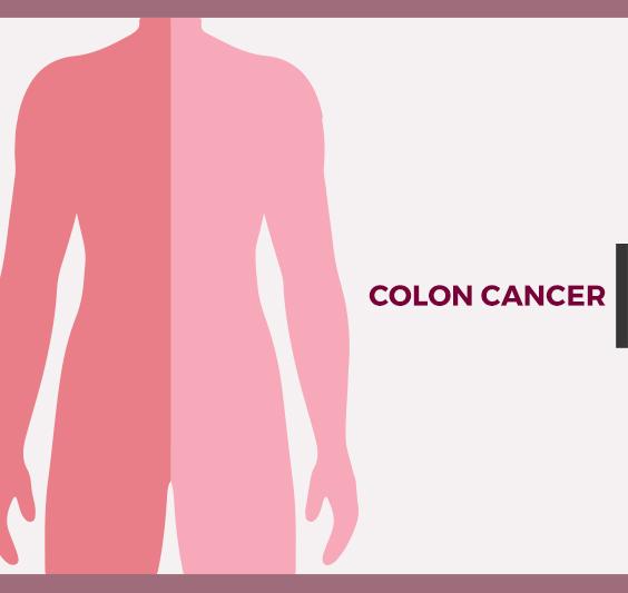 What Is Colon Cancer Blog Nanavati Hospital